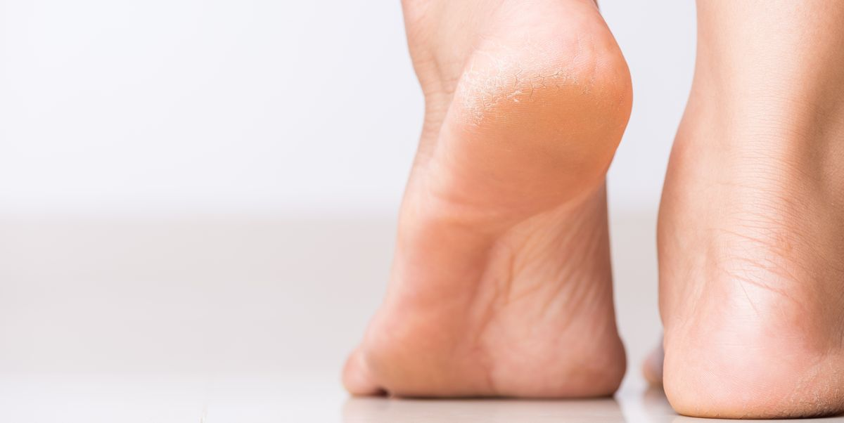 How to Get Rid of Calluses Safely, According to Dermatologists
