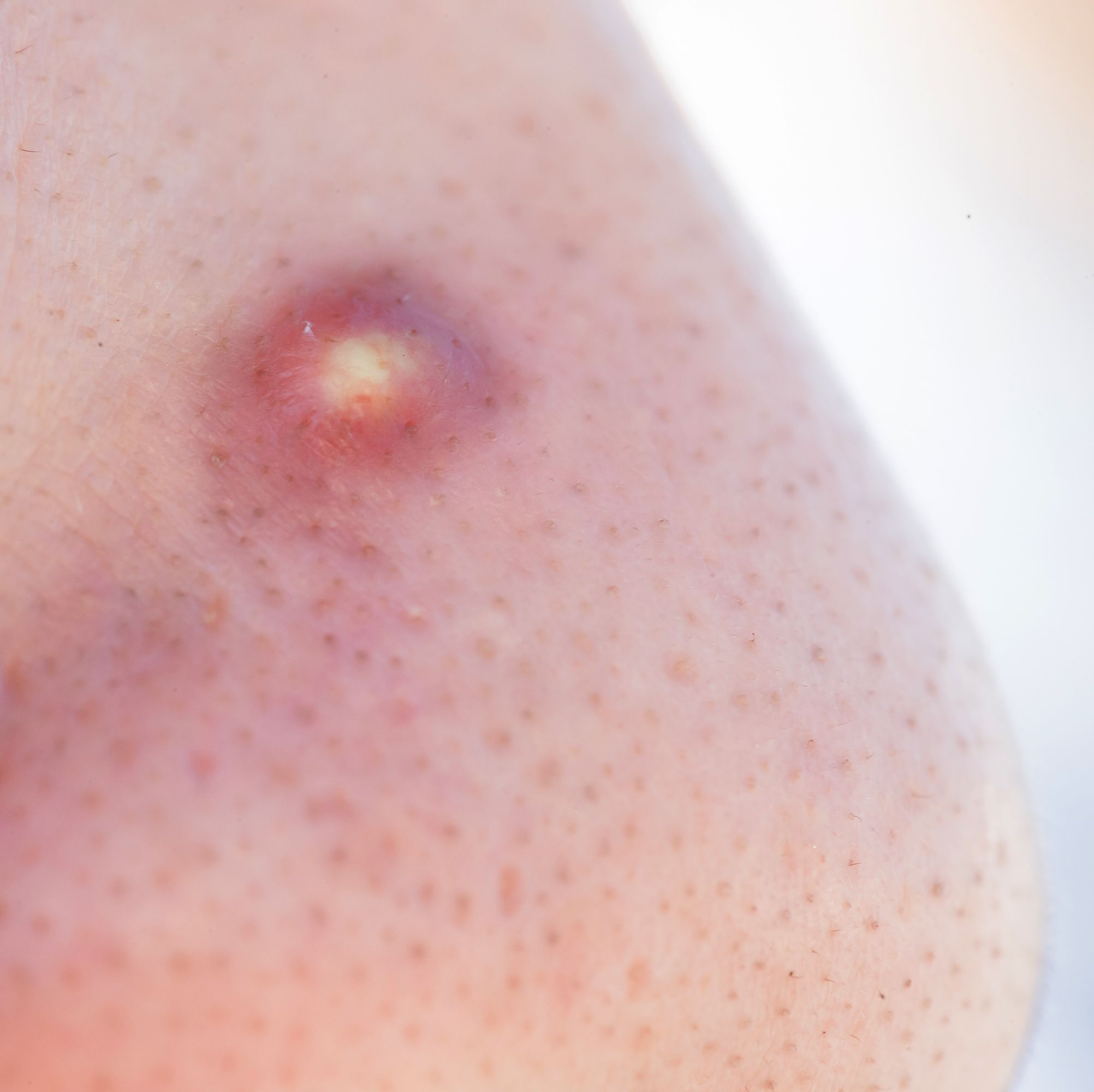 The 10 Most Satisfying Pimple Popping Videos Of 2018