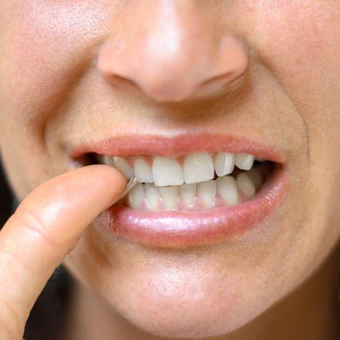 coconut oil for teeth