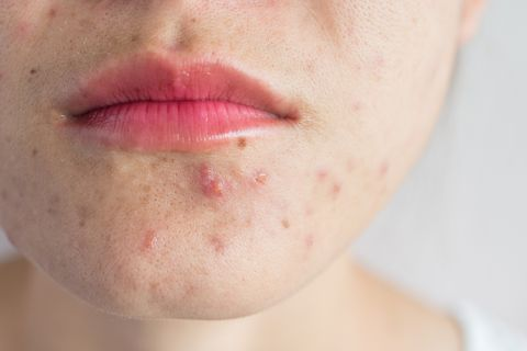close up of woman half face with problems of acne inflammation papule and pustule on her face