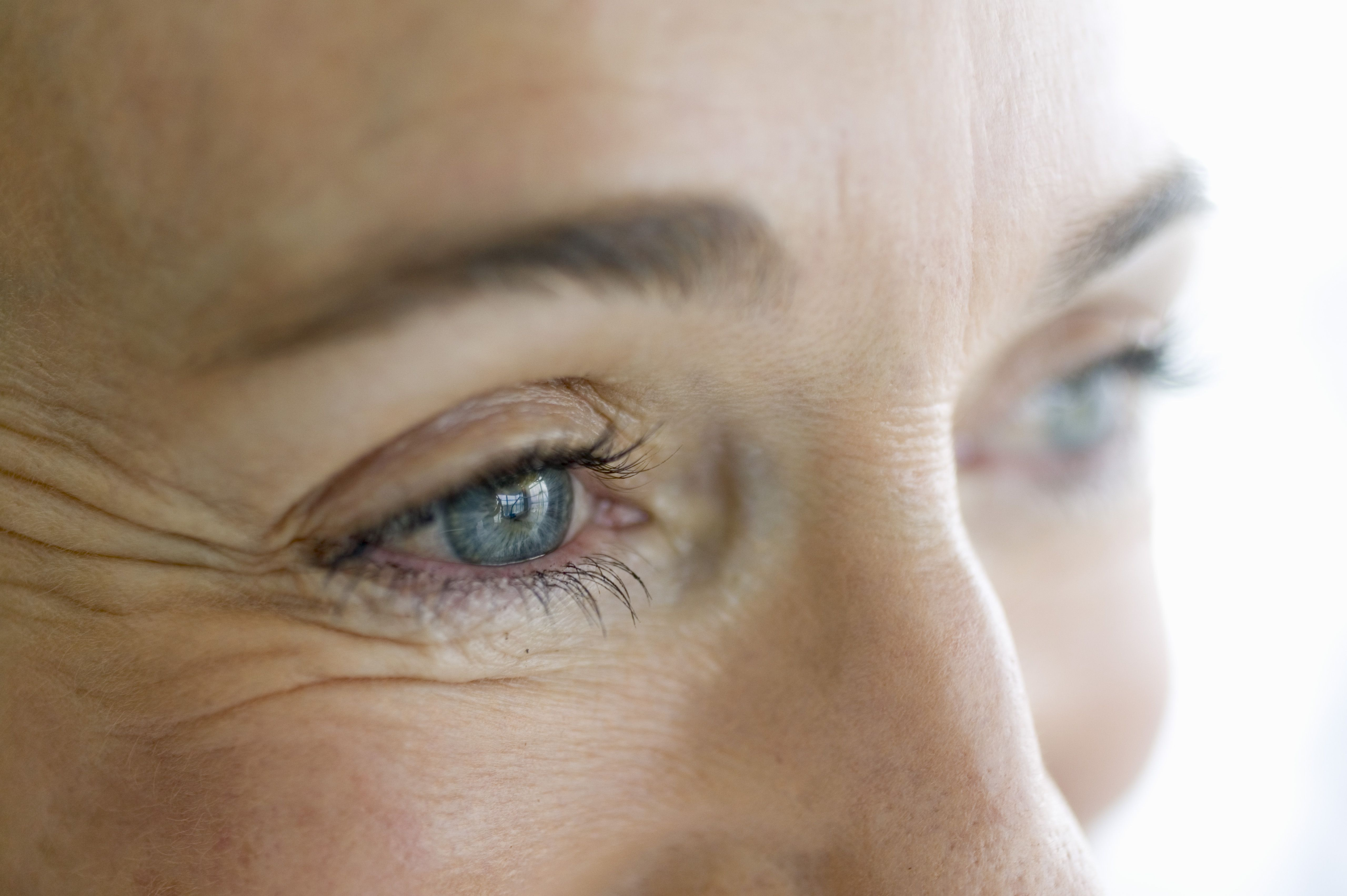 What Are Crow's Feet and How Do I Prevent Them?
