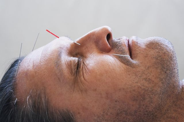 close up portrait of a man having acupuncture on his face