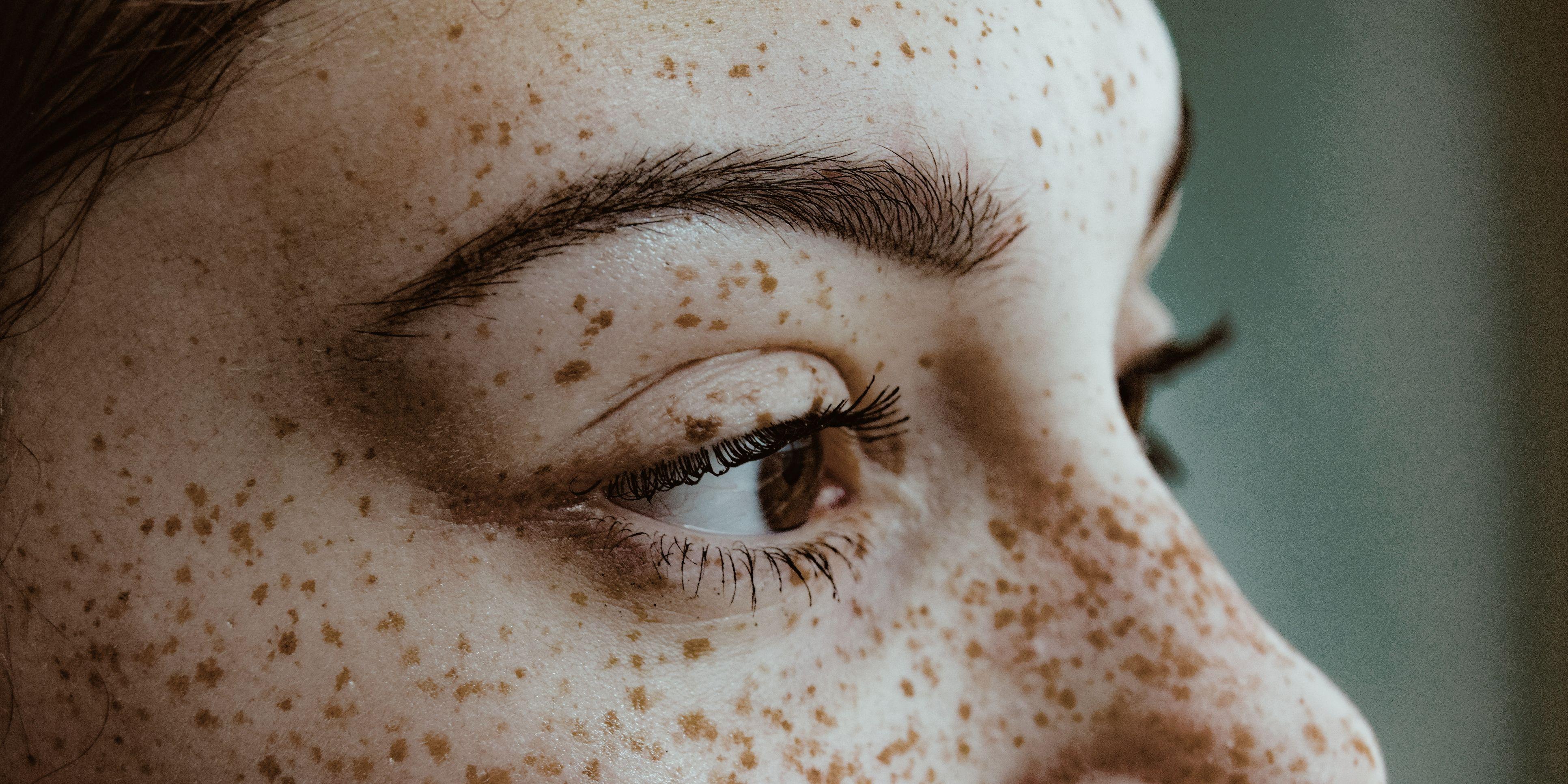 the best eye cream for dark circles