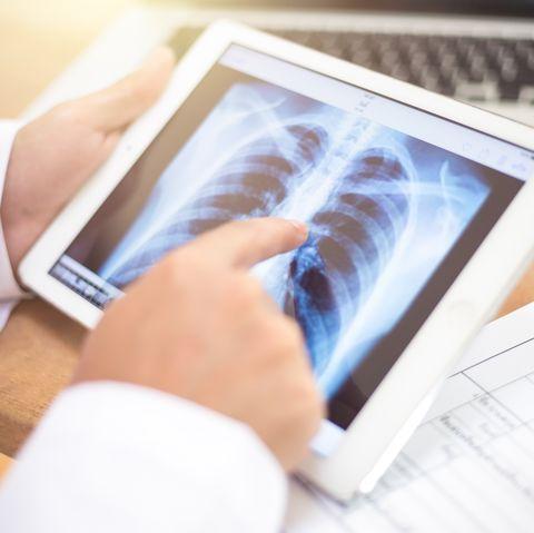symptoms of lung cancer -recurring bronchitis