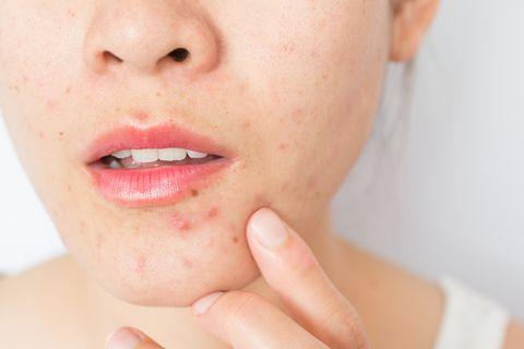 Closeup of woman half face with problems of acne inflammation (Papule and Pustule) on her face.