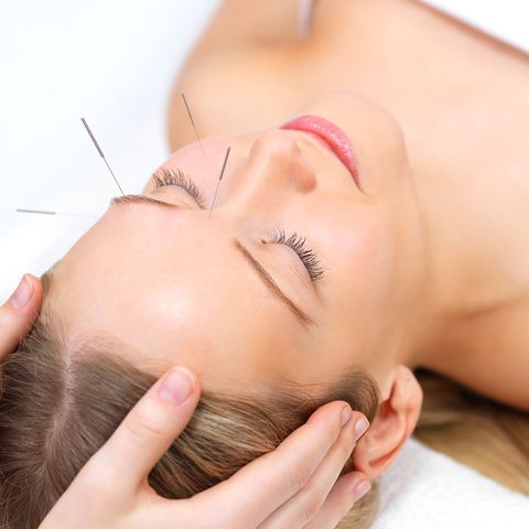 cosmetic acupuncture   facial acupuncture benefits