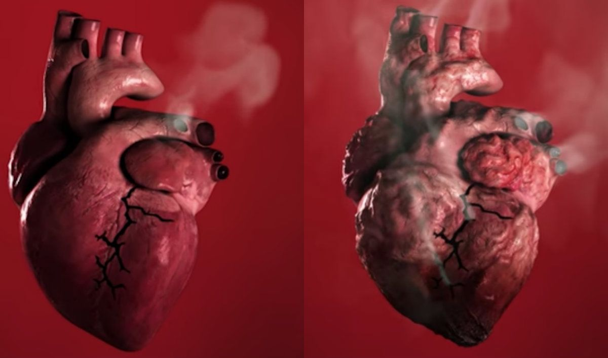Smoking Can Cause Heart Disease and Strokes, World Health Organization Video Warns
