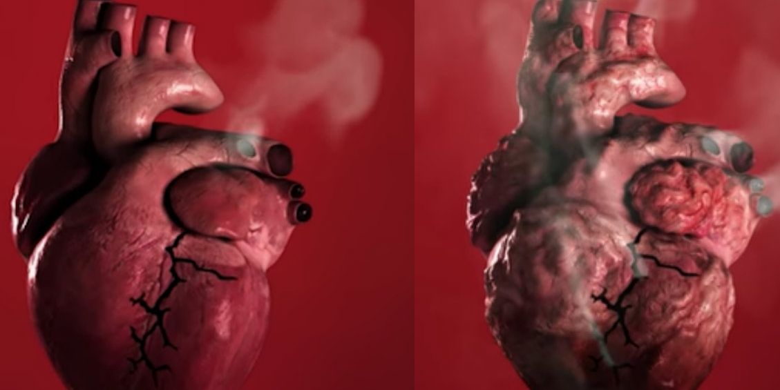 Smoking Can Cause Heart Disease And Strokes, World Health -9657