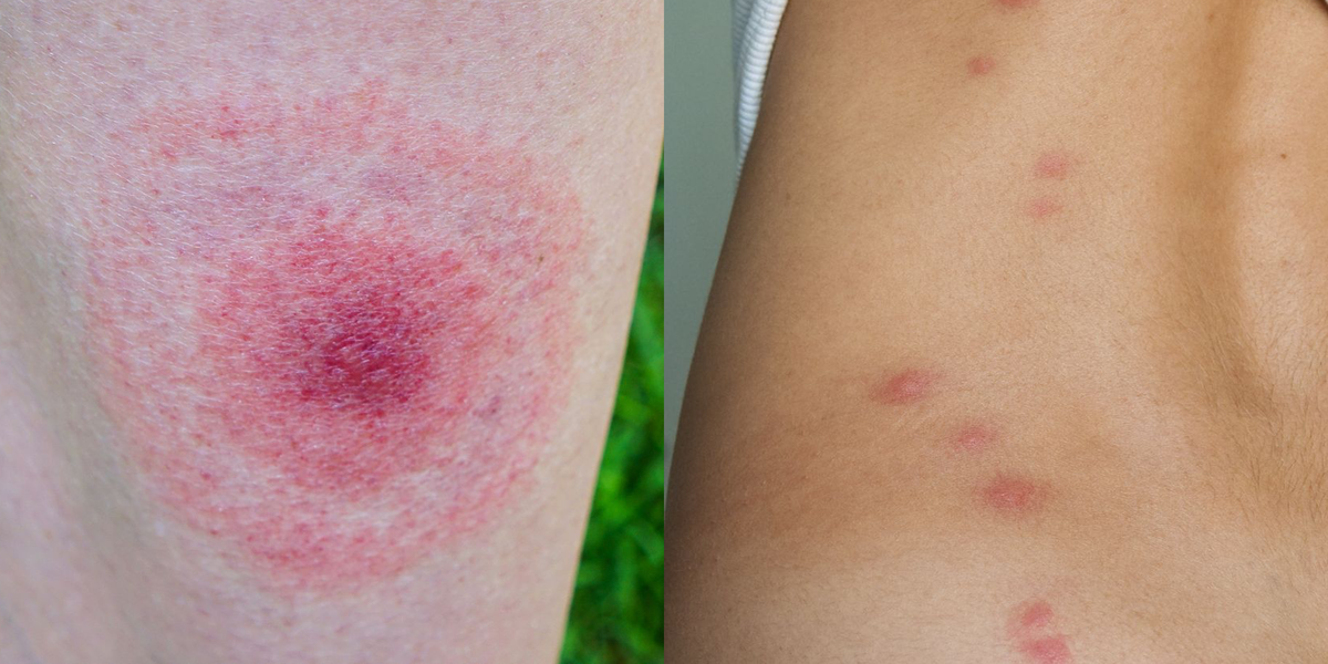 These Pictures Will Help You ID the Most Common Bug Bites This Summer