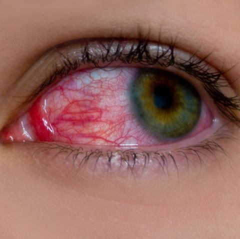 how to prevent pink eye
