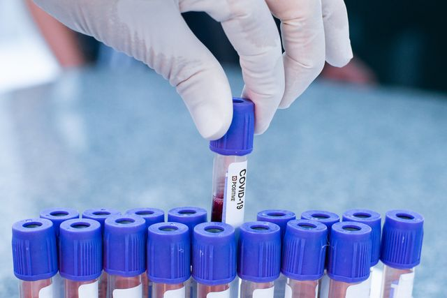coronavirus covid 19 positive test