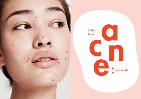 How To Get Clear Skin In 2019 Best Acne Products For Clear