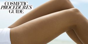 Cosmetic procedures guide – cellulite treatments
