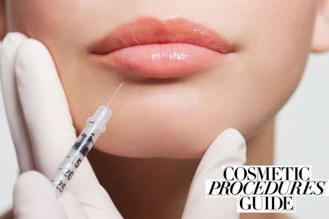 Lip fillers: Everything you need to know about lip augmentation