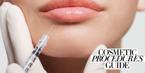 Cosmetic procedures guide – lip fillers