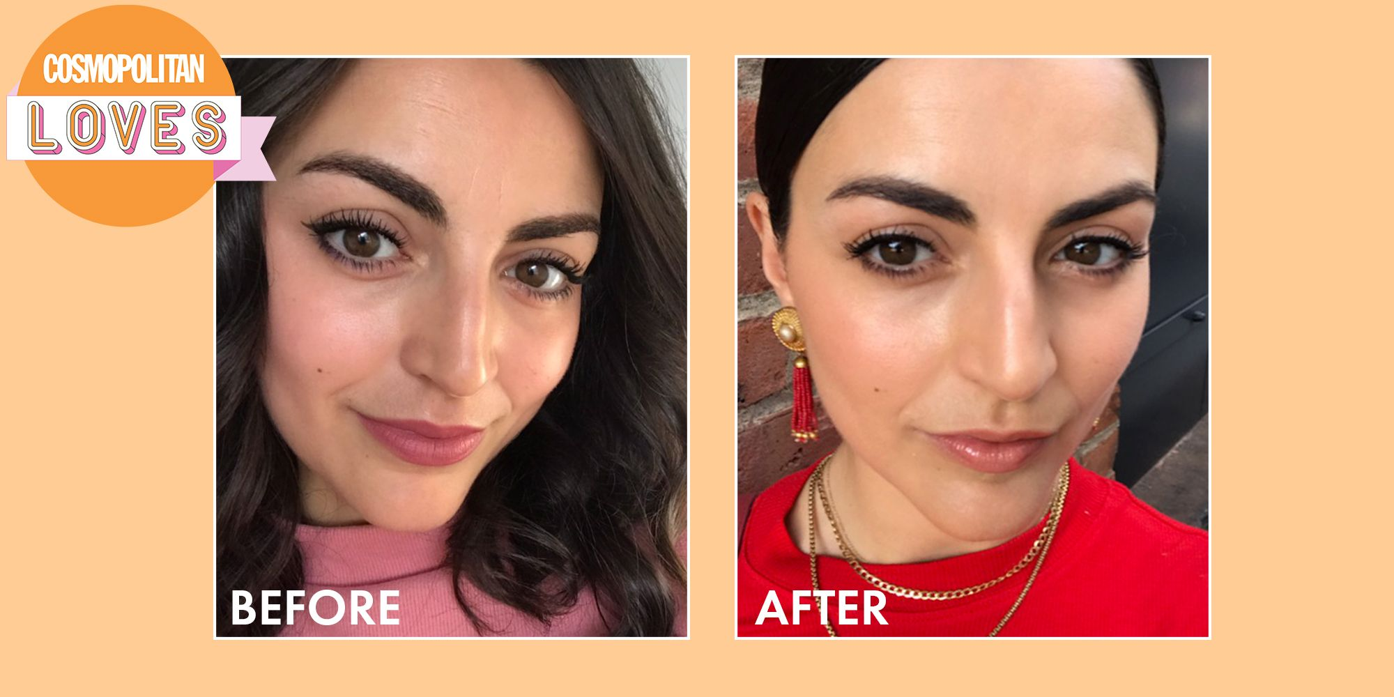 This $21 Face Sticker Stopped Me From Getting Botox