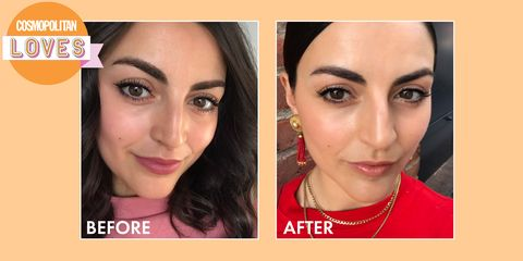 Frownies Face Sticker – How to Get Rid of Forehead Wrinkles