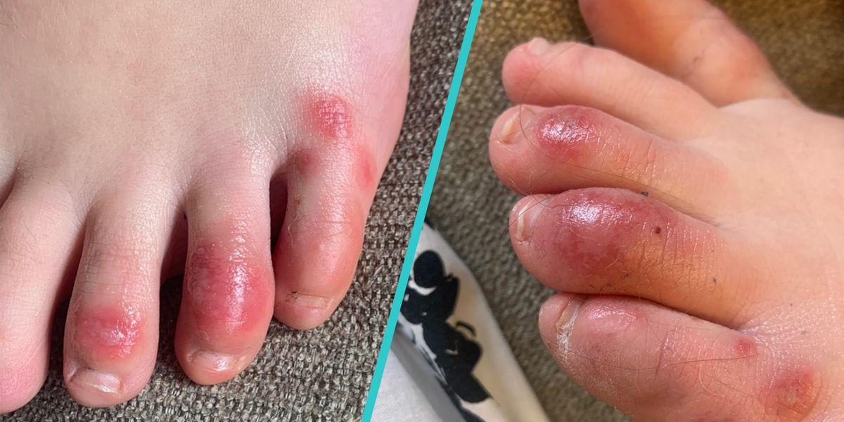 """COVID Toes"" May Be a New, Rare Symptom of Coronavirus, According to Doctors"
