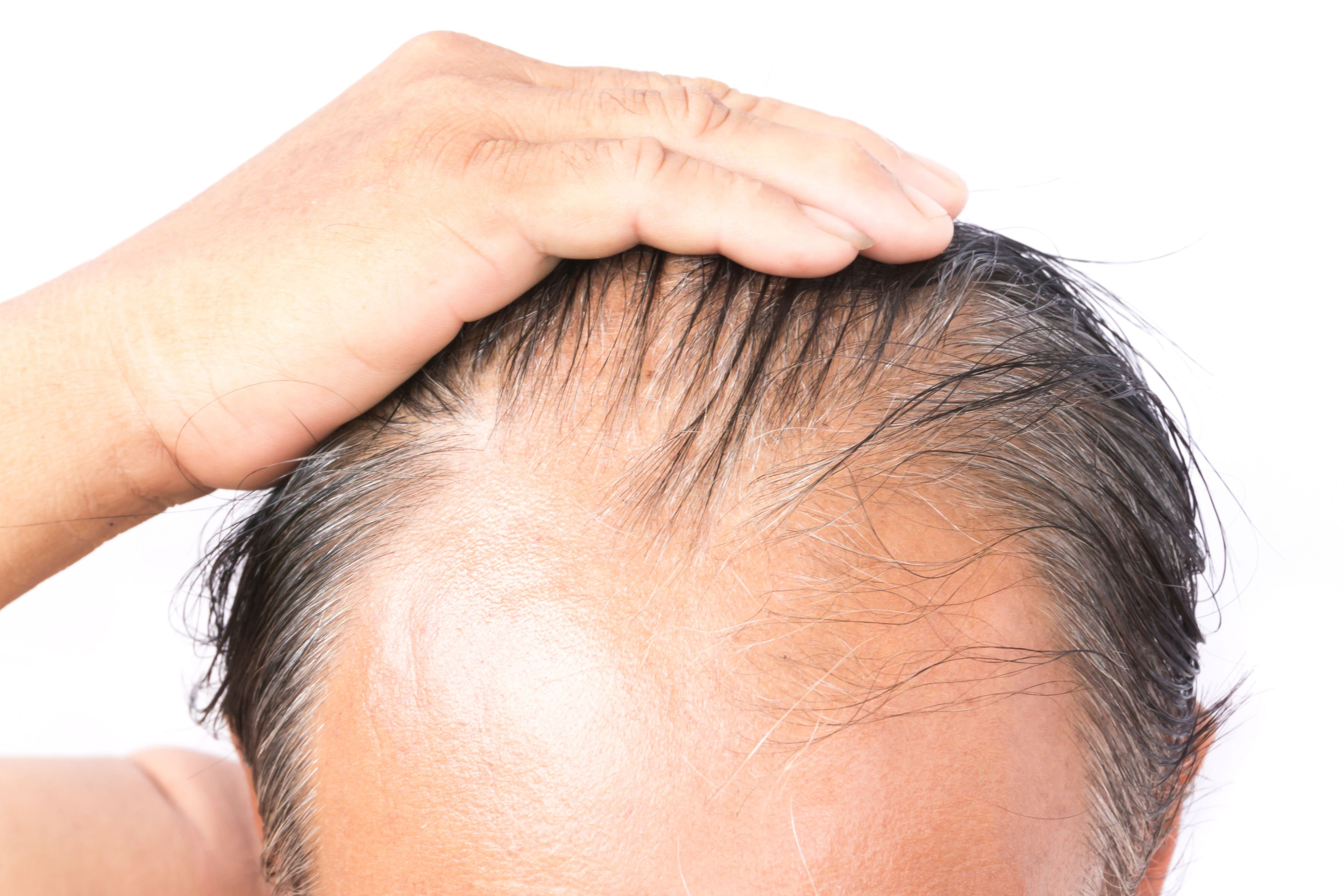 Before And After Images Of Hair Transplant Results