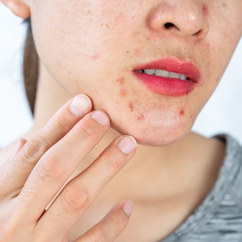 cropped shot of woman having problems of acne inflamed on her lower face