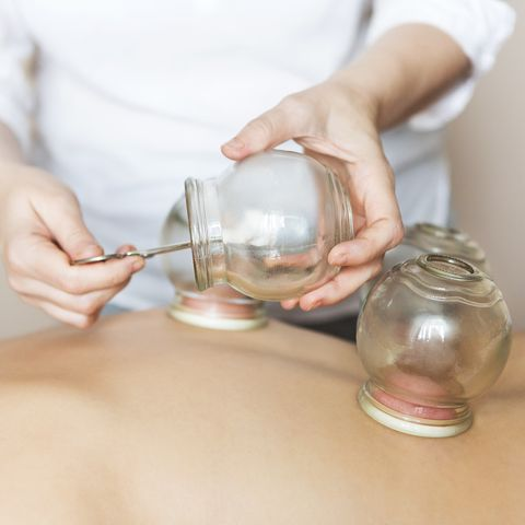 young woman getting treatment at medical clinic fire cupping cups on back of female patient in acupuncture therapy