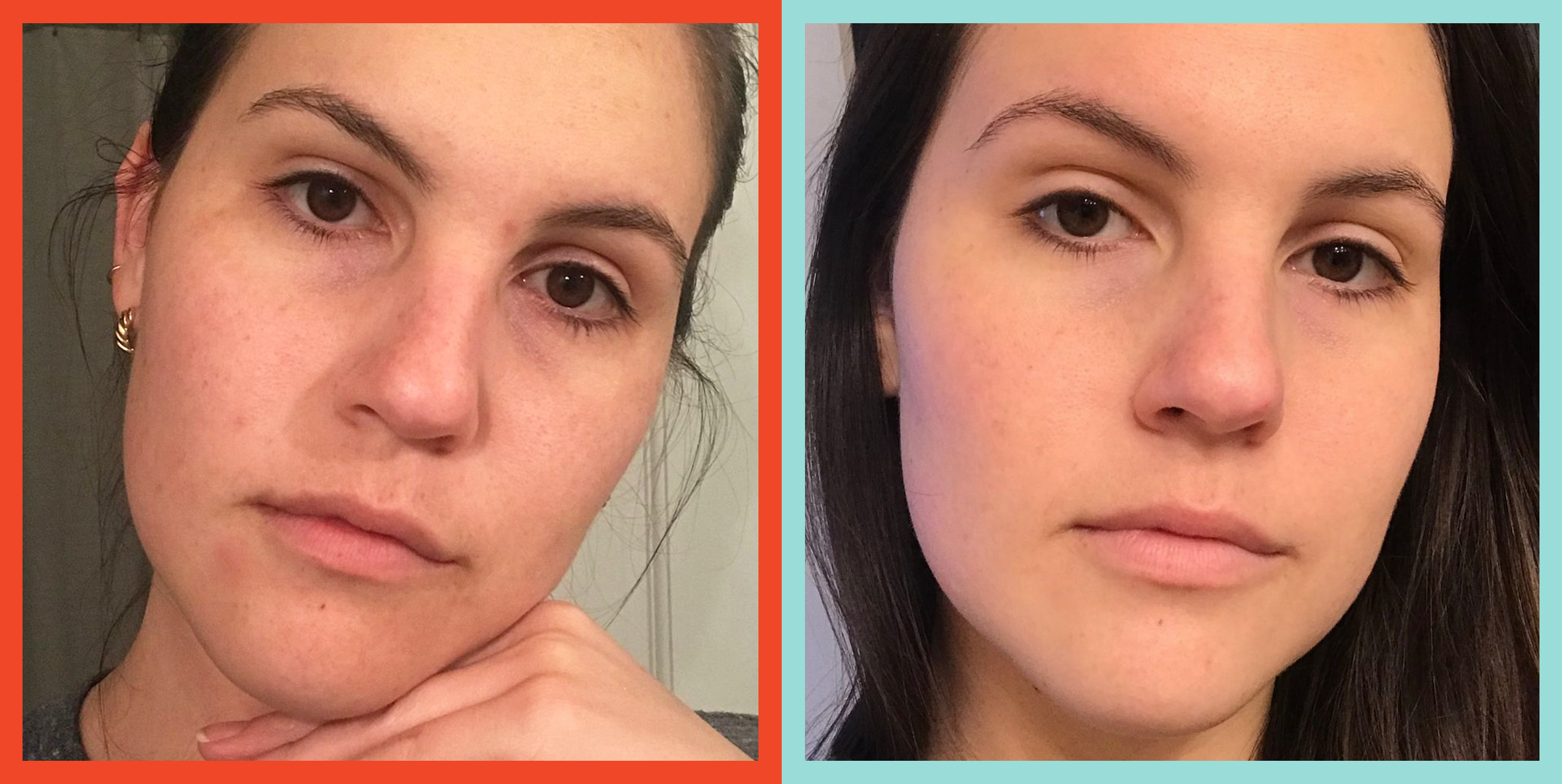 Curology Review I Tried Curology For 60 Days To Treat My Acne 2020