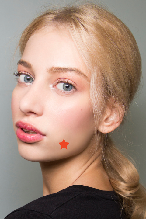 How To Treat Cystic Acne In 2020 According To Dermatologists