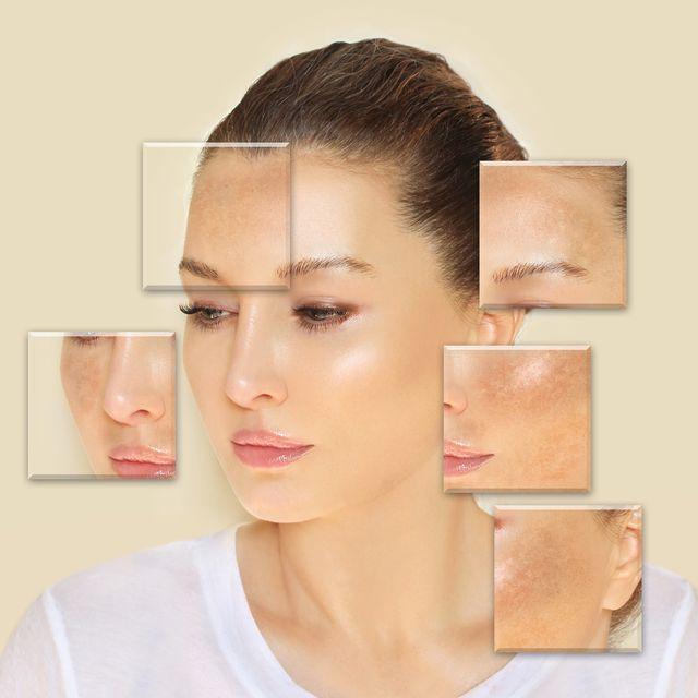 dark spots, freckles,hyperpigmentation melasma or chloasma
