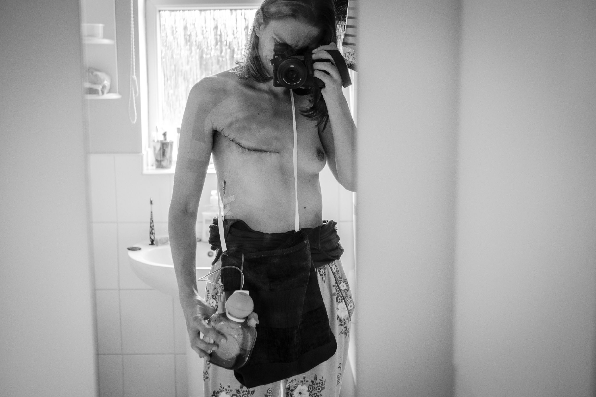 This breast cancer survivor documented her illness with a series of powerful photographs