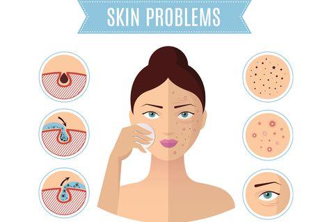 毛孔粗大,收斂毛孔,膚質,毛孔類型,保養,改善,預防