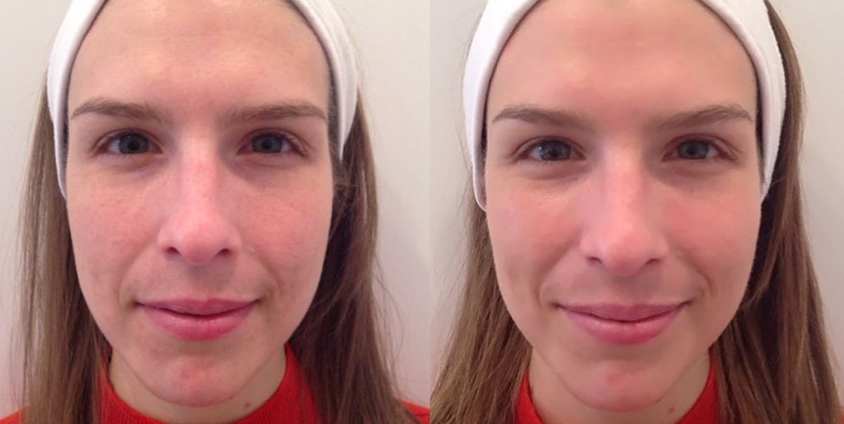 Dermalinfusion Gave Me Better Looking Skin In 20 Minutes