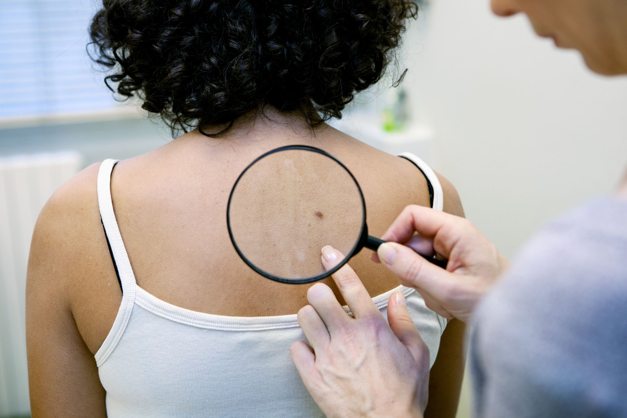 Exactly What Different Types of Skin Cancer Look Like, According to Dermatologists