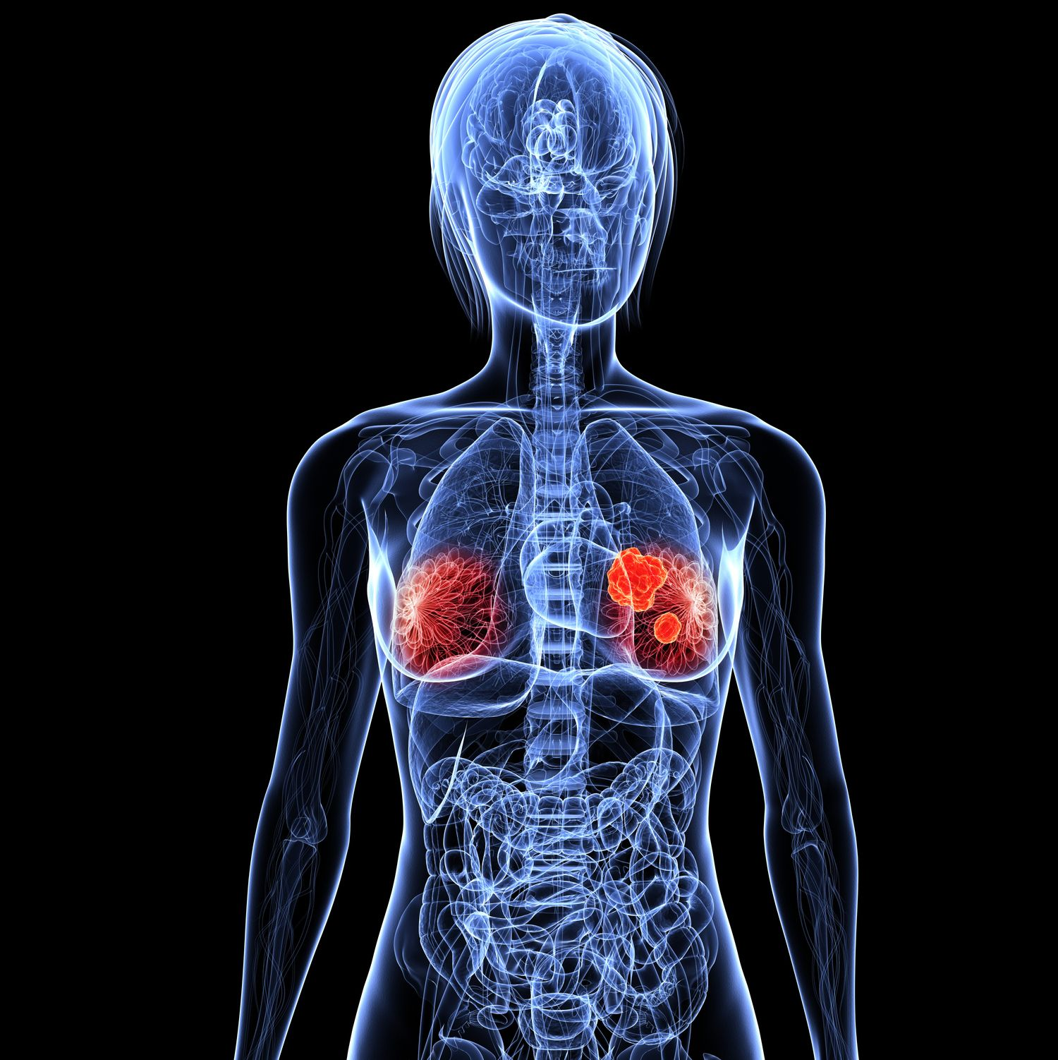Digital female X-ray in blue with breast cancer tumor in red