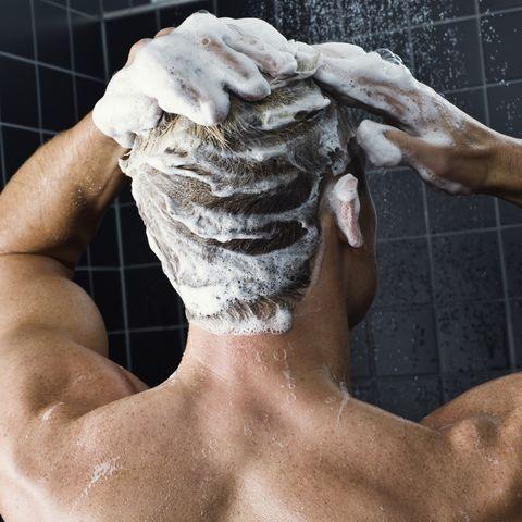 diprosone lotion