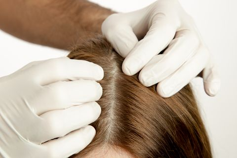頭皮屑洗髮精