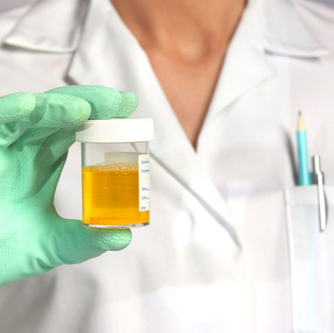 White blood cells in urine
