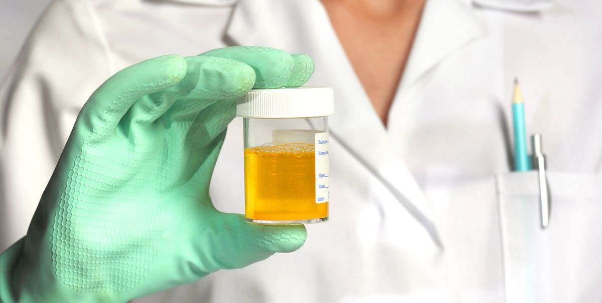 Urine test: why are white blood cells in my urine?