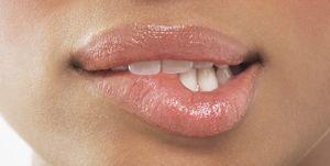 Droge lippen zeg je gedag met dit wondermiddel