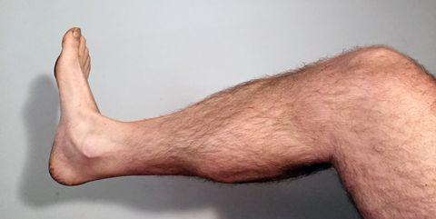 dolor tibial anterior al correr