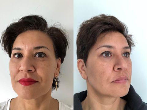 esther vd herik voor en na het testen van the solution van oslo skin lab