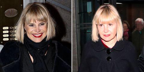 Analizamos el antes y el después de Eugenia Martínez de Irujo. En su rostros se aprecia un claro rejuvenecimiento facial.