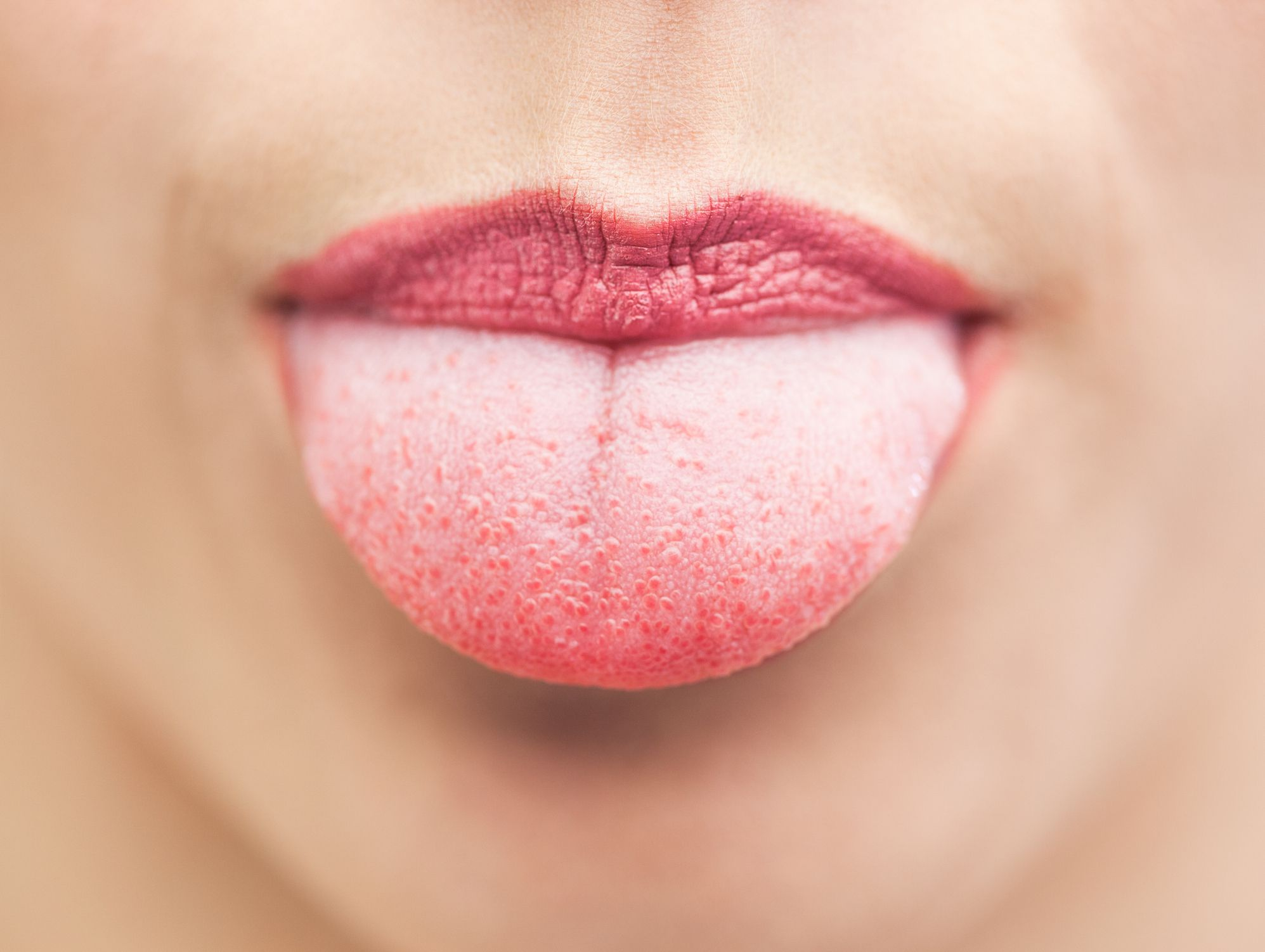 8 Causes of Inflamed, Swollen Taste Buds, According to Doctors