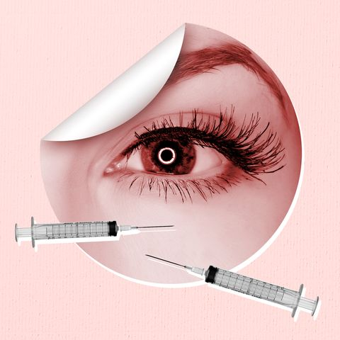 What to Know About Under Eye Fillers - Treatments for Dark