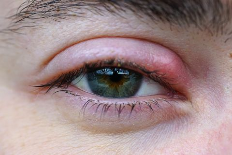 How to Get Rid of That Painful Stye on Your Eye, According to Dermatologists