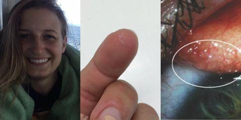 Thelazia gulosa eyeball parasite