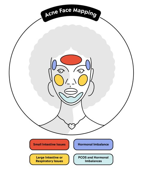 Face Mapping For Acne What Breakouts Can Reveal About Your Health - Acne face map organs