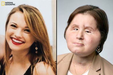 At 21, KatieStubblefieldbecame the youngest person in the United States to have a face transplant.
