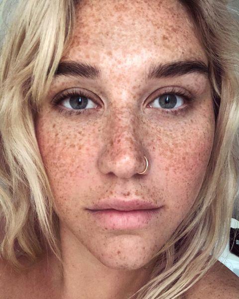 Kesha en Instagram.