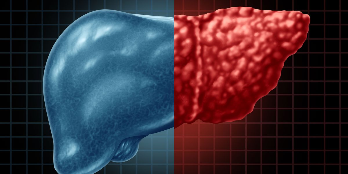 Fatty liver disease: causes and how to get rid of it