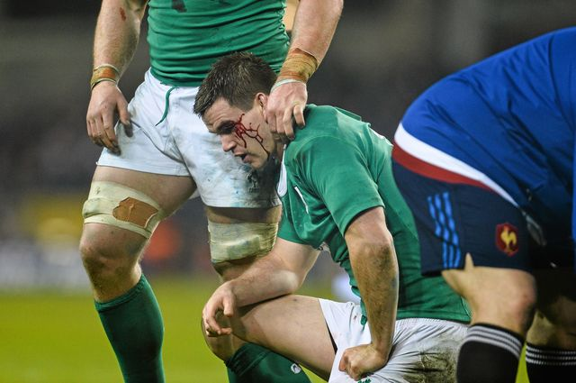ireland v france   rbs six nations rugby championship